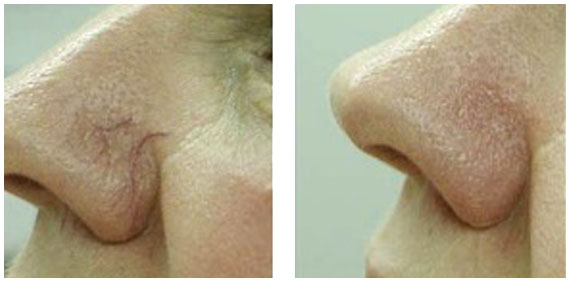 spider-veins-before-and-after